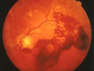 増殖性糖尿病網膜症